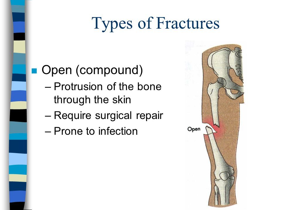 Types of Fractures n Open (compound) –Protrusion of the bone through the skin –Require surgical repair –Prone to infection