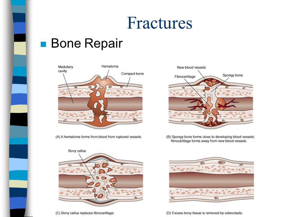 Fractures n Bone Repair