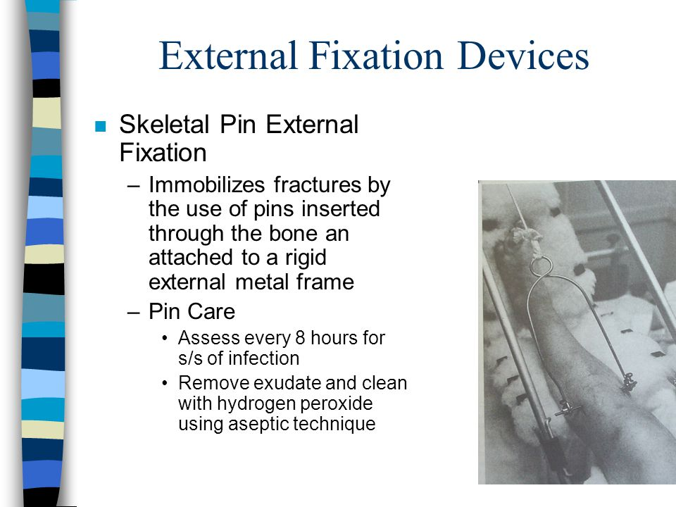 External Fixation Devices n Skeletal Pin External Fixation –Immobilizes fractures by the use of pins inserted through the bone an attached to a rigid