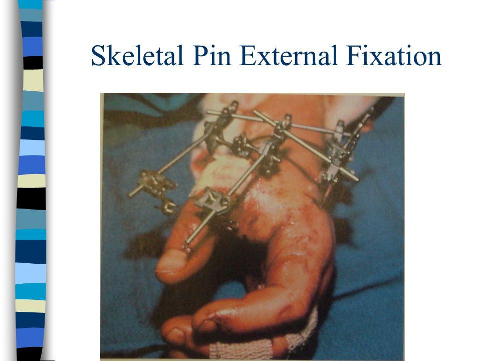 Skeletal Pin External Fixation