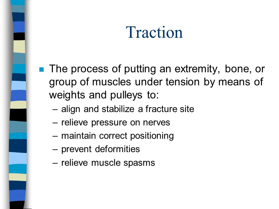 Traction n The process of putting an extremity, bone, or group of muscles under tension by means of weights and pulleys to: –align and stabilize a fra