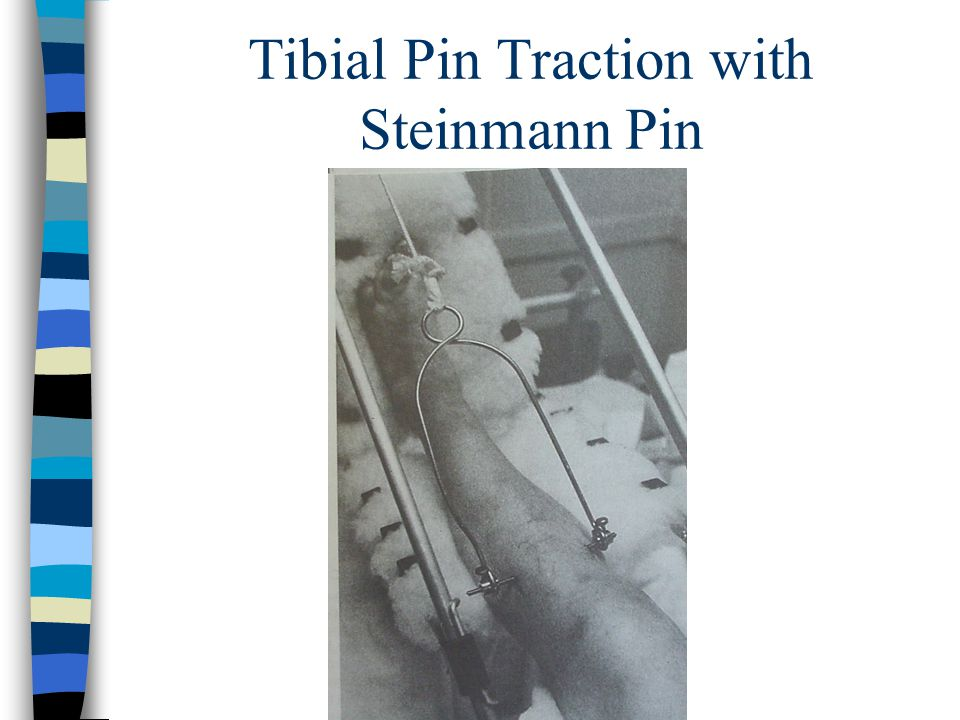 Tibial Pin Traction with Steinmann Pin