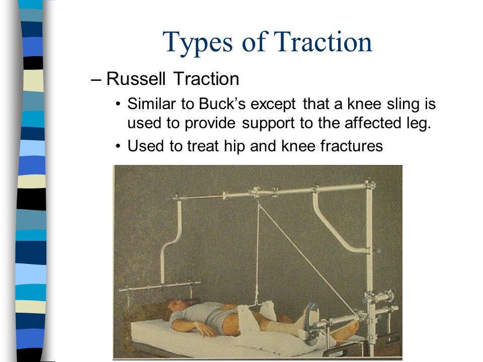 Types of Traction –Russell Traction Similar to Bucks except that a knee sling is used to provide support to the affected leg. Used to treat hip and kn