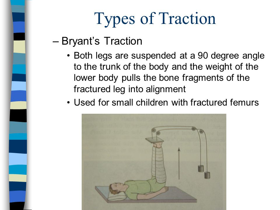 Types of Traction –Bryants Traction Both legs are suspended at a 90 degree angle to the trunk of the body and the weight of the lower body pulls the b