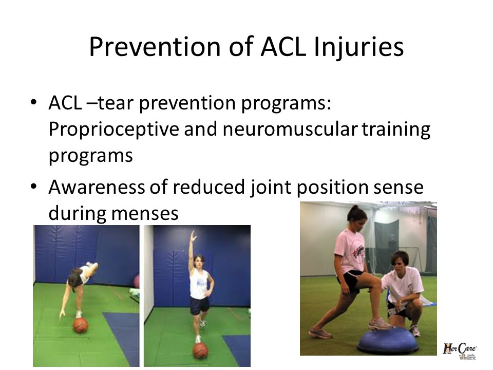 Prevention of ACL Injuries ACL –tear prevention programs: Proprioceptive and neuromuscular training programs Awareness of reduced joint position sense during menses