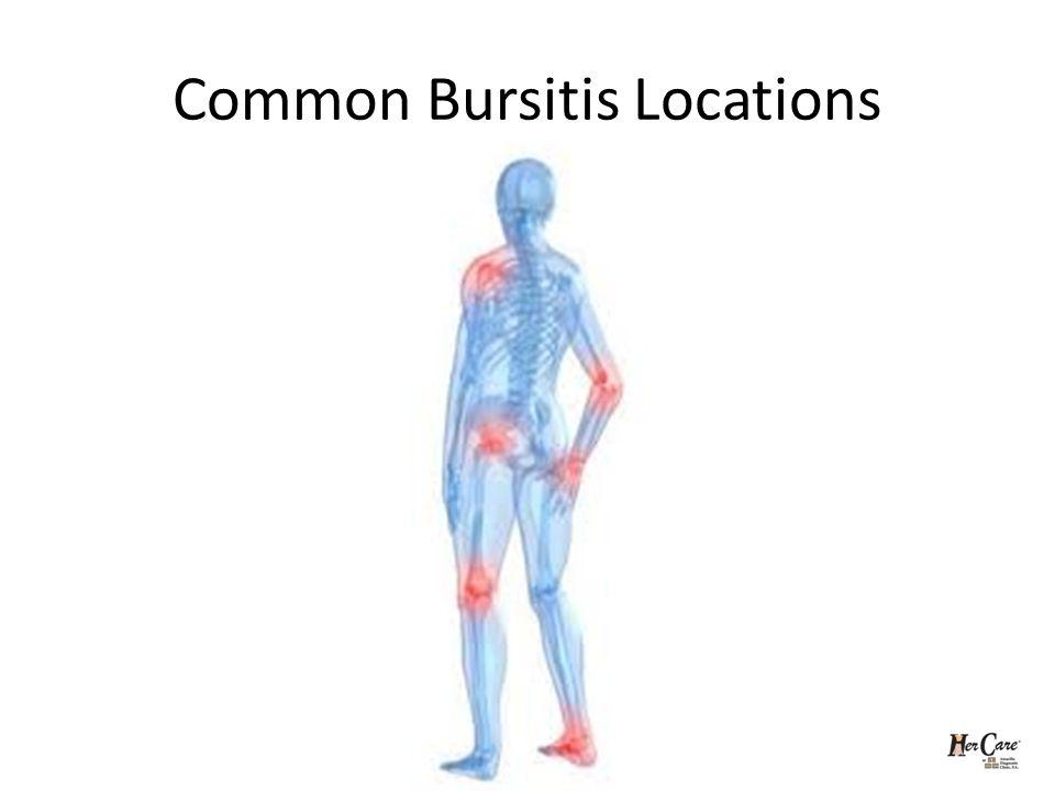 Common Bursitis Locations