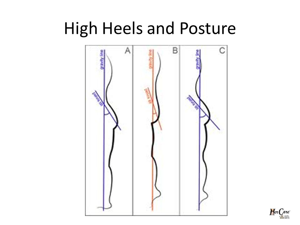 High Heels and Posture