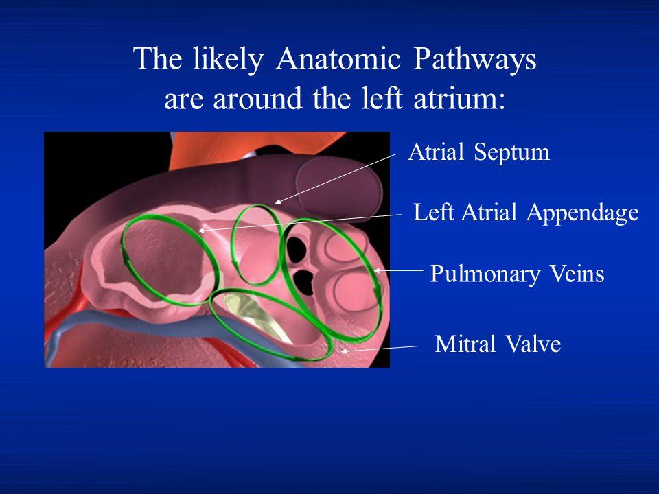 The likely Anatomic Pathways are around the left atrium: Pulmonary Veins Mitral Valve Atrial Septum Left Atrial Appendage