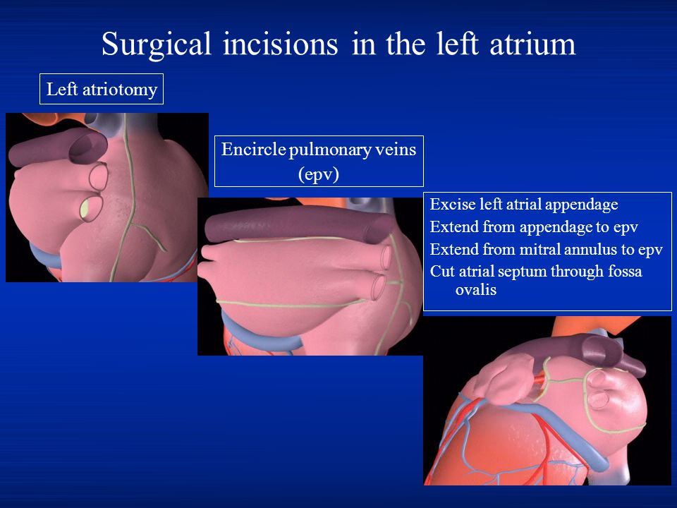 Surgical incisions in the left atrium Excise left atrial appendage Extend from appendage to epv Extend from mitral annulus to epv Cut atrial septum th