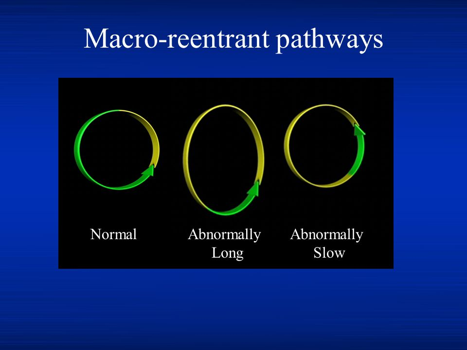 Macro-reentrant pathways NormalAbnormally Long Abnormally Slow