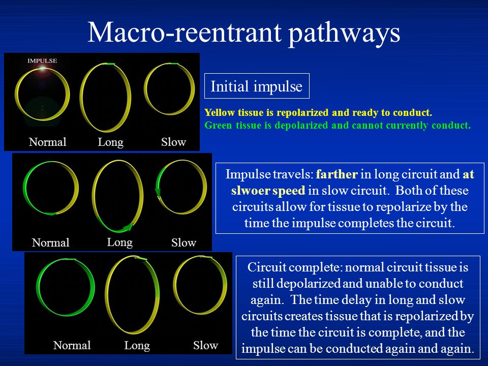 Macro-reentrant pathways N NormalLongSlow Initial impulse Impulse travels: farther in long circuit and at slwoer speed in slow circuit. Both of these