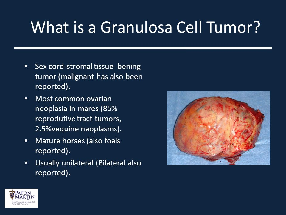 What is a Granulosa Cell Tumor? Sex cord-stromal tissue bening tumor (malignant has also been reported). Most common ovarian neoplasia in mares (85% r