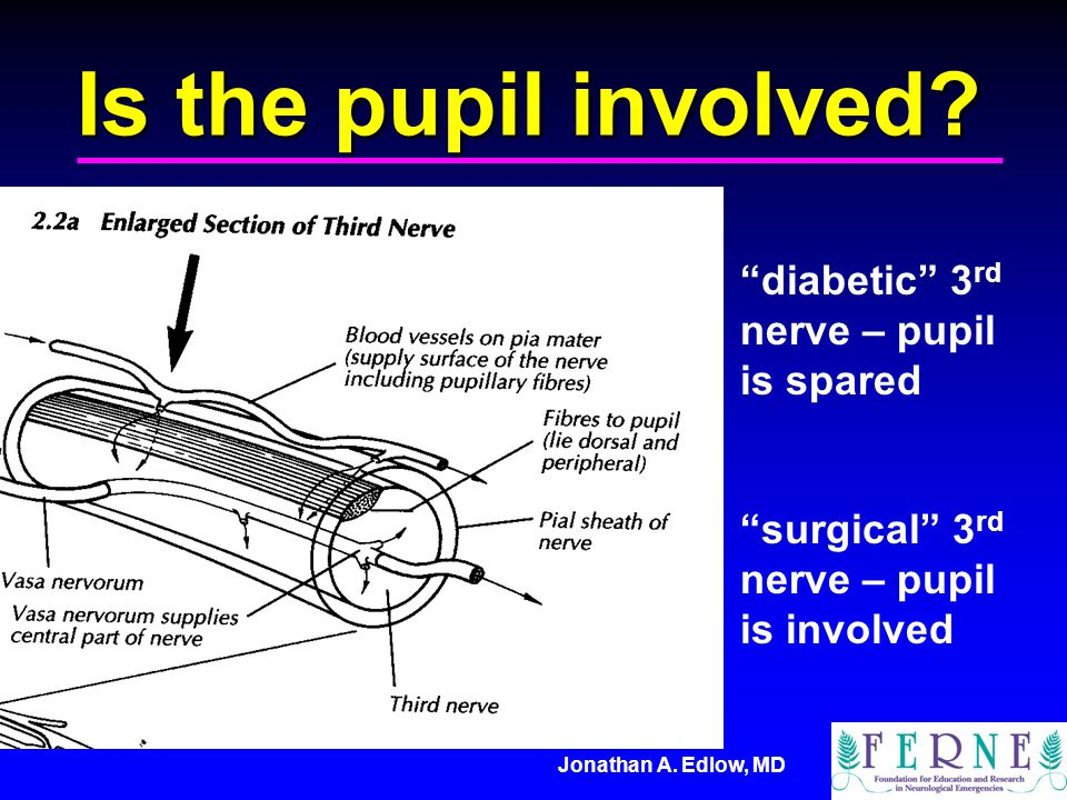 Jonathan A. Edlow, MD Is the pupil involved? diabetic 3 rd nerve – pupil is spared surgical 3 rd nerve – pupil is involved
