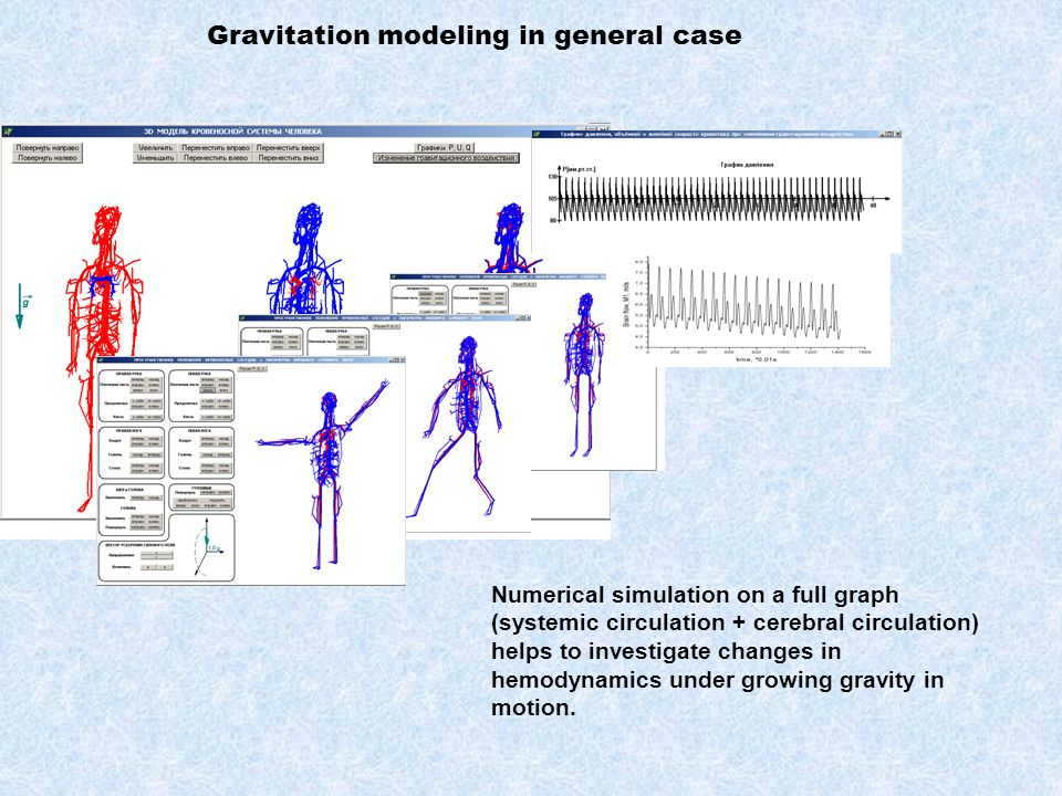 Numerical simulation on a full graph (systemic circulation + cerebral circulation) helps to investigate changes in hemodynamics under growing gravity