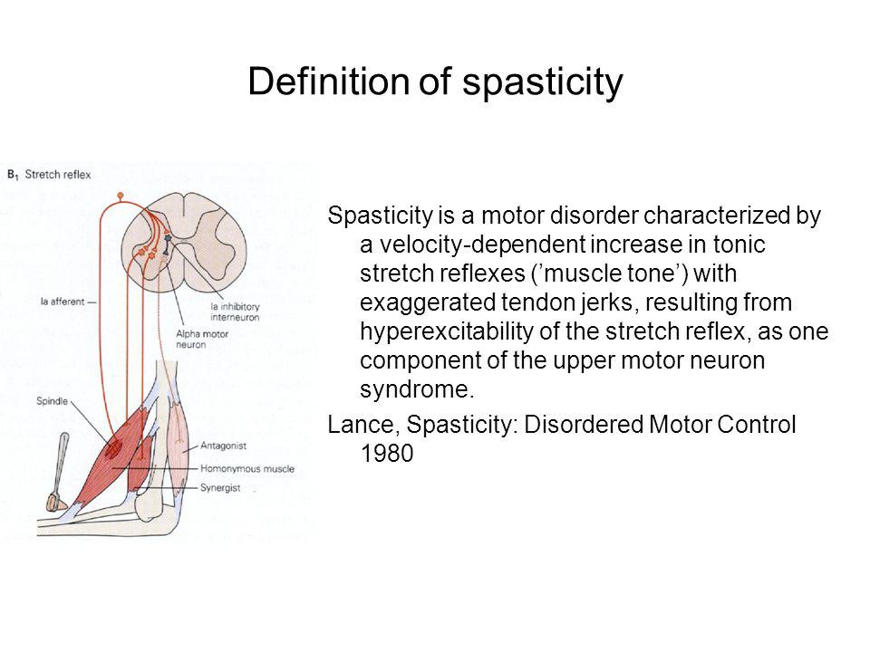 Definition of spasticity Spasticity is a motor disorder characterized by a velocity-dependent increase in tonic stretch reflexes (muscle tone) with ex