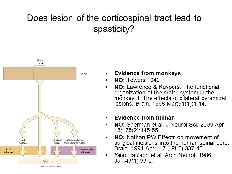 Does lesion of the corticospinal tract lead to spasticity? Evidence from monkeys NO: Towers 1940 NO: Lawrence & Kuypers. The functional organization o