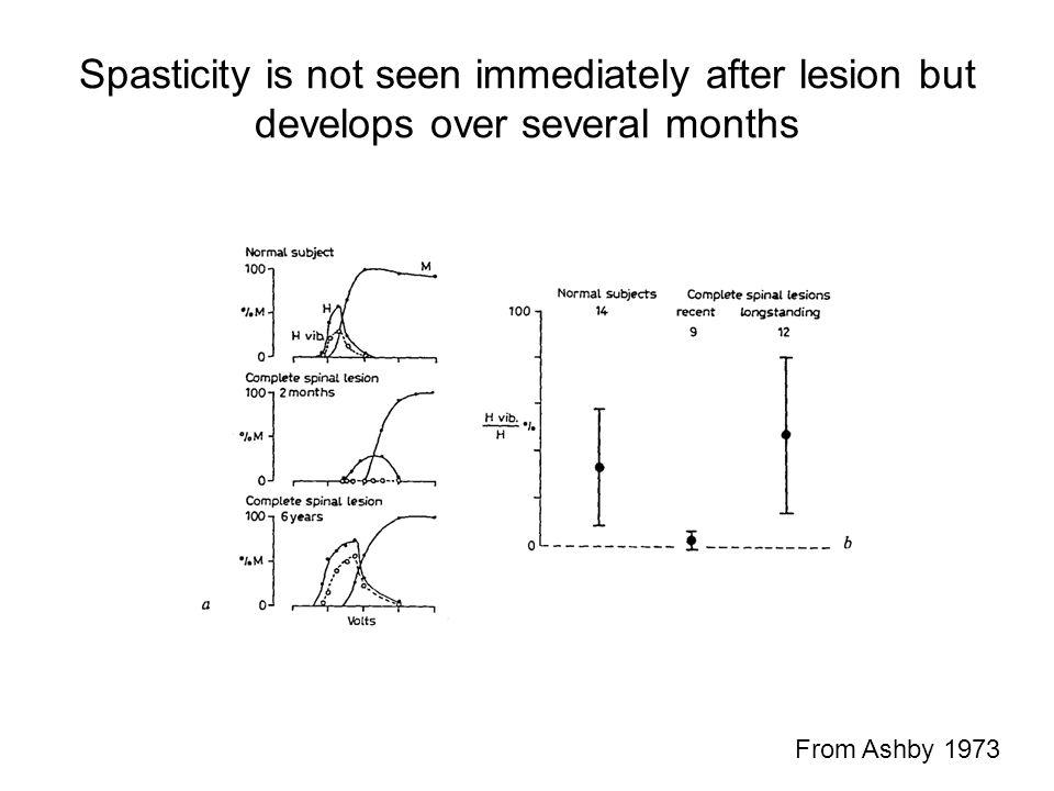 Spasticity is not seen immediately after lesion but develops over several months From Ashby 1973
