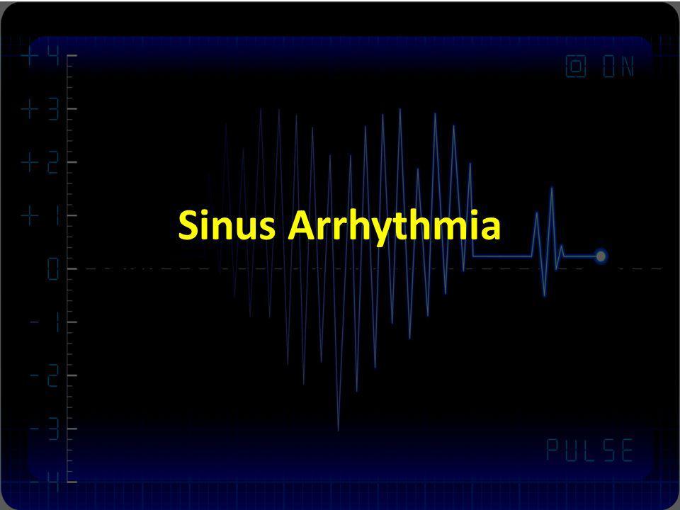 Sinus Arrhythmia