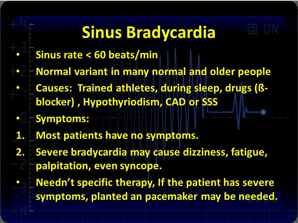Sinus Bradycardia Sinus rate < 60 beats/min Normal variant in many normal and older people Causes: Trained athletes, during sleep, drugs (ß- blocker), Hypothyriodism, CAD or SSS Symptoms: 1.Most patients have no symptoms.