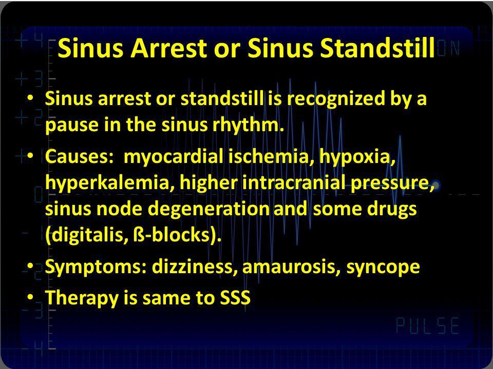 Sinus Arrest or Sinus Standstill Sinus arrest or standstill is recognized by a pause in the sinus rhythm. Causes: myocardial ischemia, hypoxia, hyperk