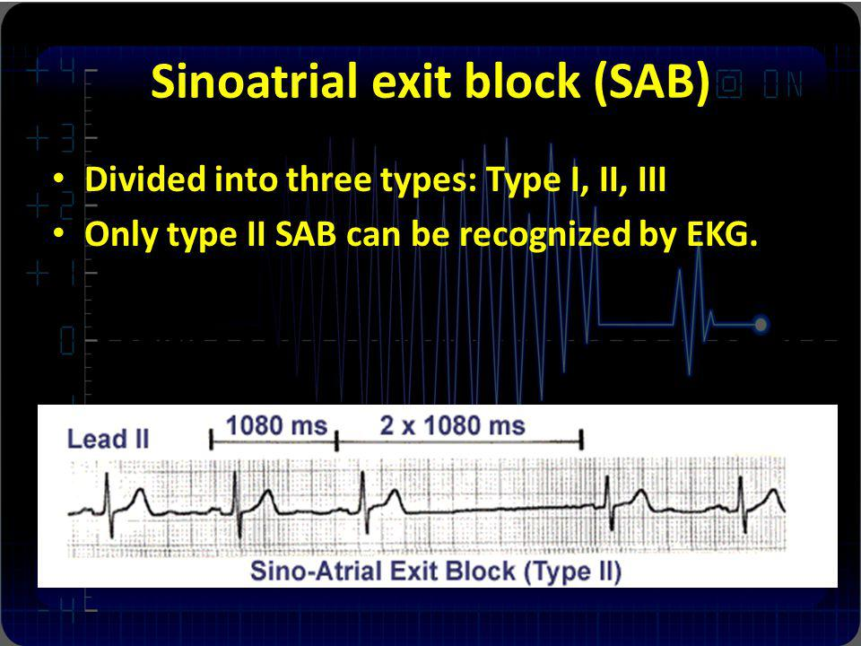 Sinoatrial exit block (SAB) Divided into three types: Type I, II, III Only type II SAB can be recognized by EKG.