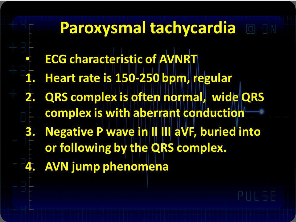Paroxysmal tachycardia ECG characteristic of AVNRT 1.Heart rate is 150-250 bpm, regular 2.QRS complex is often normal, wide QRS complex is with aberrant conduction 3.Negative P wave in II III aVF, buried into or following by the QRS complex.