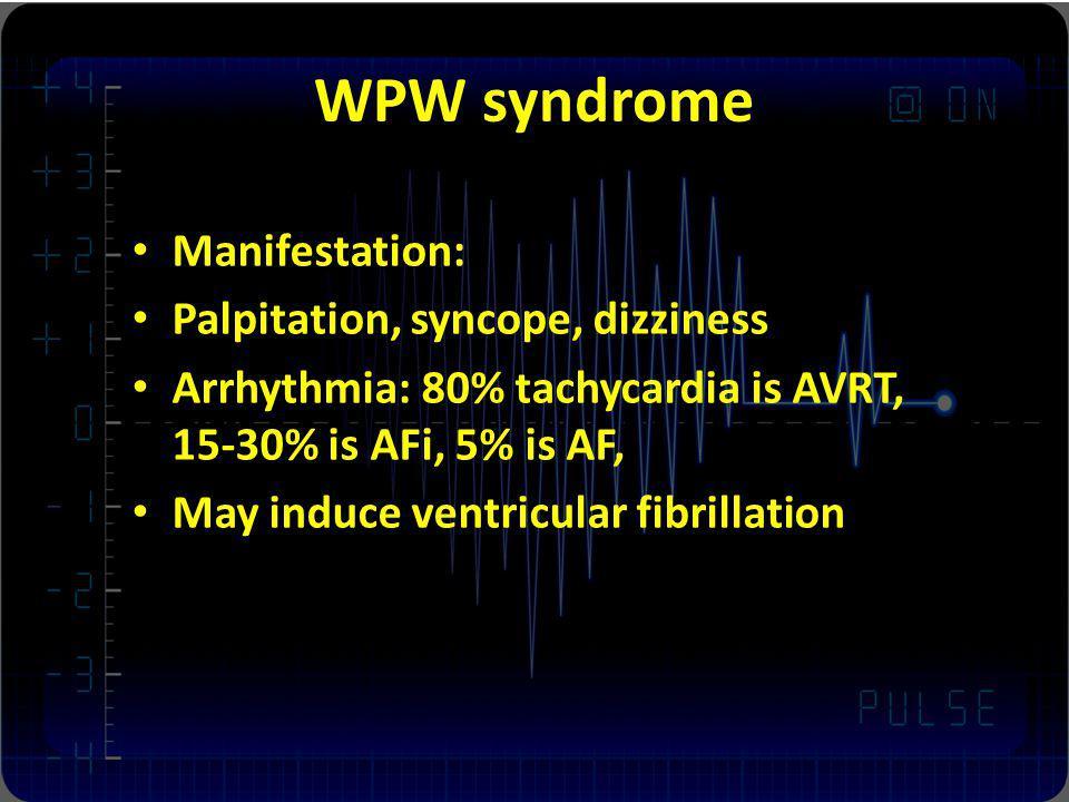 WPW syndrome Manifestation: Palpitation, syncope, dizziness Arrhythmia: 80% tachycardia is AVRT, 15-30% is AFi, 5% is AF, May induce ventricular fibri