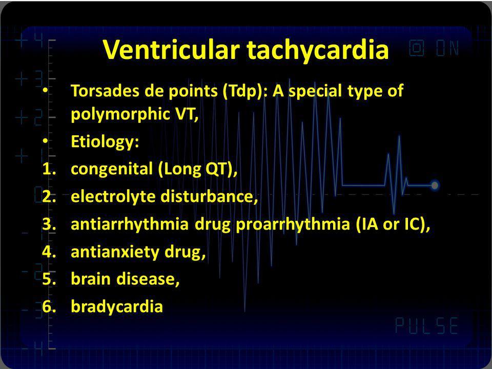 Ventricular tachycardia Torsades de points (Tdp): A special type of polymorphic VT, Etiology: 1.congenital (Long QT), 2.electrolyte disturbance, 3.ant