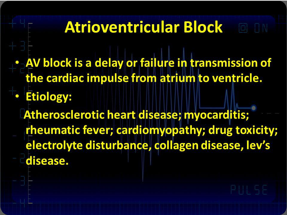 Atrioventricular Block AV block is a delay or failure in transmission of the cardiac impulse from atrium to ventricle. Etiology: Atherosclerotic heart