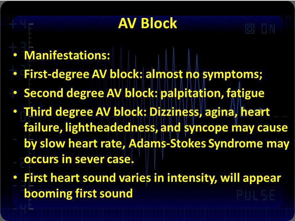 AV Block Manifestations: First-degree AV block: almost no symptoms; Second degree AV block: palpitation, fatigue Third degree AV block: Dizziness, agi
