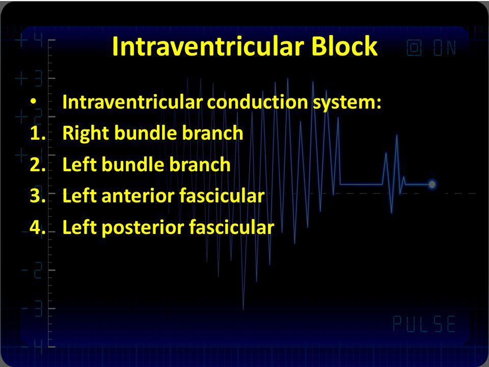 Intraventricular Block Intraventricular conduction system: 1.Right bundle branch 2.Left bundle branch 3.Left anterior fascicular 4.Left posterior fascicular