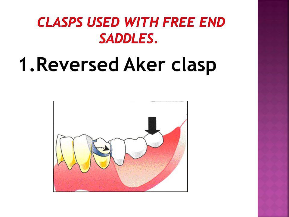 1.Reversed Aker clasp