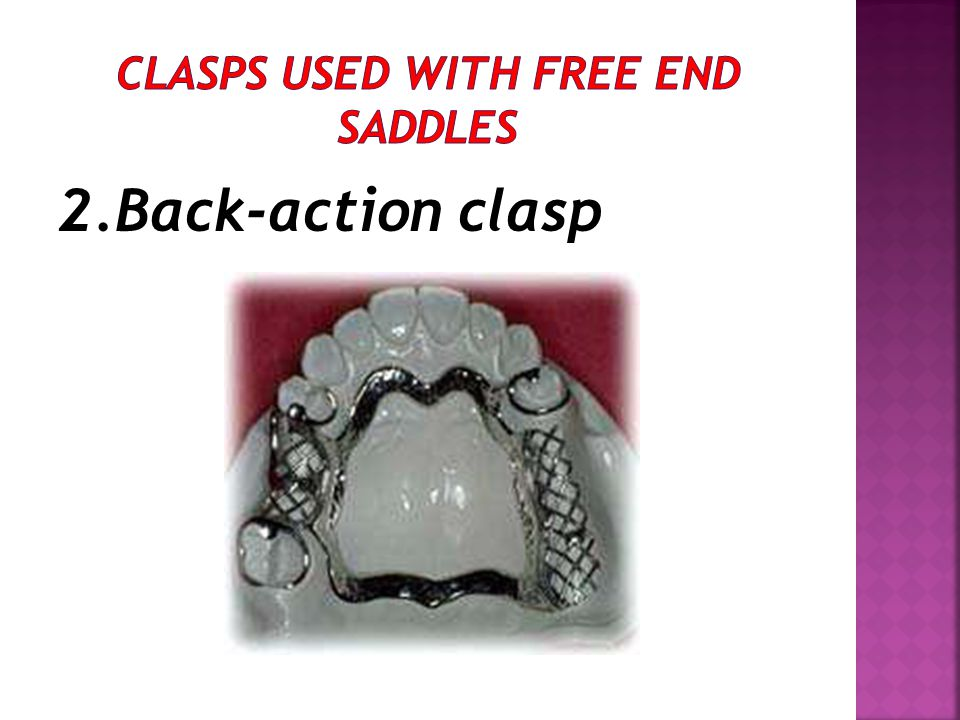 2.Back-action clasp