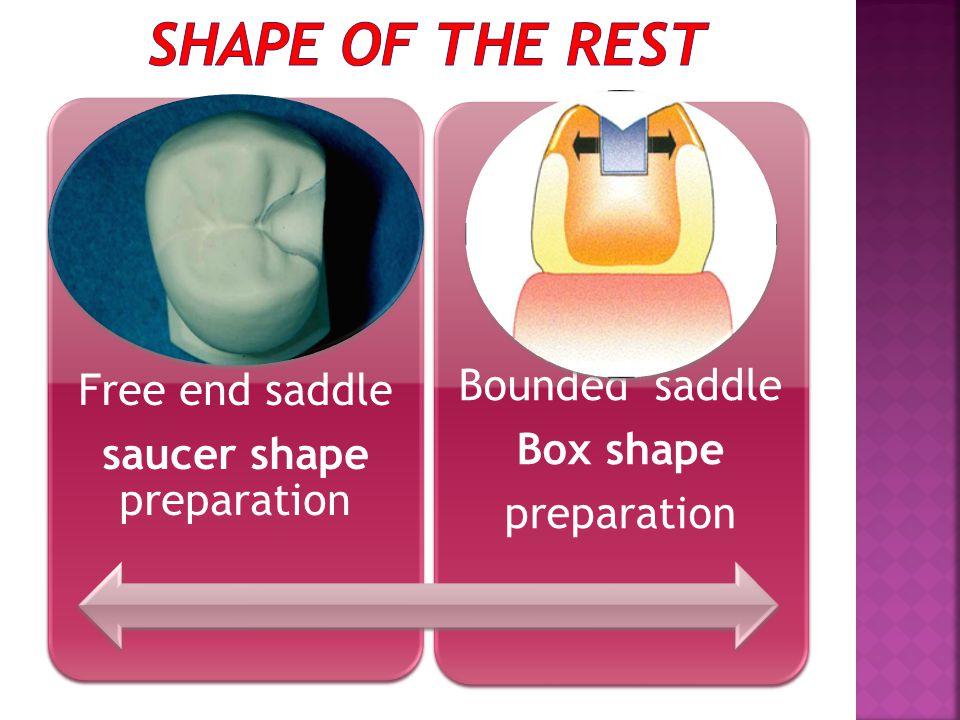 Free end saddle saucer shape preparation Bounded saddle Box shape preparation