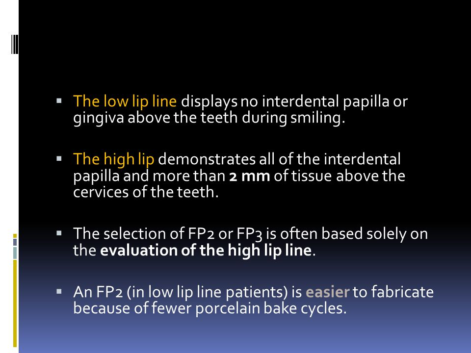 The low lip line displays no interdental papilla or gingiva above the teeth during smiling. The high lip demonstrates all of the interdental papilla a