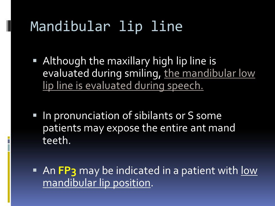 Mandibular lip line Although the maxillary high lip line is evaluated during smiling, the mandibular low lip line is evaluated during speech. In pronu