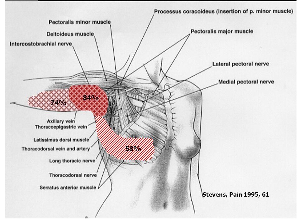 PMPS - Pathofysiologie- 84% 74% 58% Stevens, Pain 1995, 61