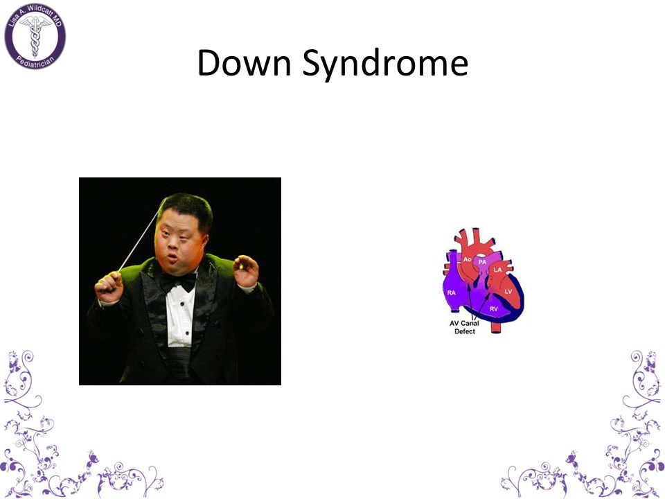 Cardiac Defects in Syndromes Down syndrome: AVSD Turner syndrome:Bicupsid aortic valve, coarctation Marfan syndrome:MVP, MR, dilated aortic root Fetal