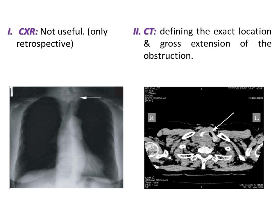 I. CXR: I. CXR: Not useful. (only retrospective) II.CT: II.CT: defining the exact location & gross extension of the obstruction.