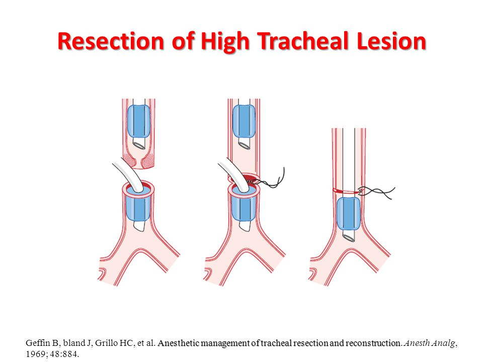 Resection of High Tracheal Lesion Anesthetic management of tracheal resection and reconstruction Geffin B, bland J, Grillo HC, et al. Anesthetic manag