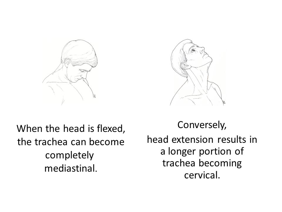 Conversely, head extension results in a longer portion of trachea becoming cervical. When the head is flexed, the trachea can become completely medias