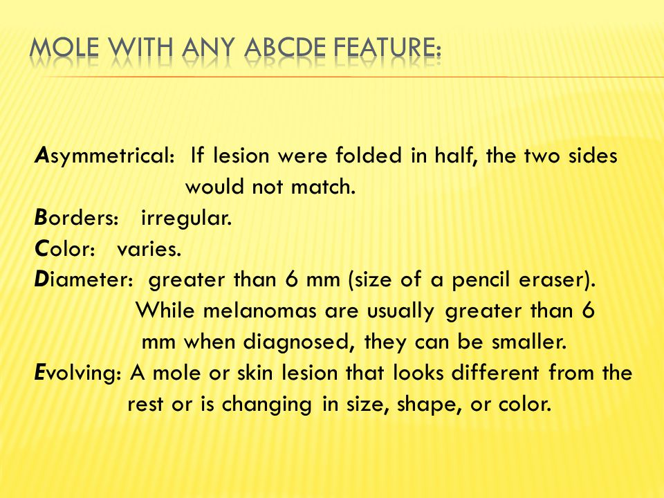 Asymmetrical: If lesion were folded in half, the two sides would not match.
