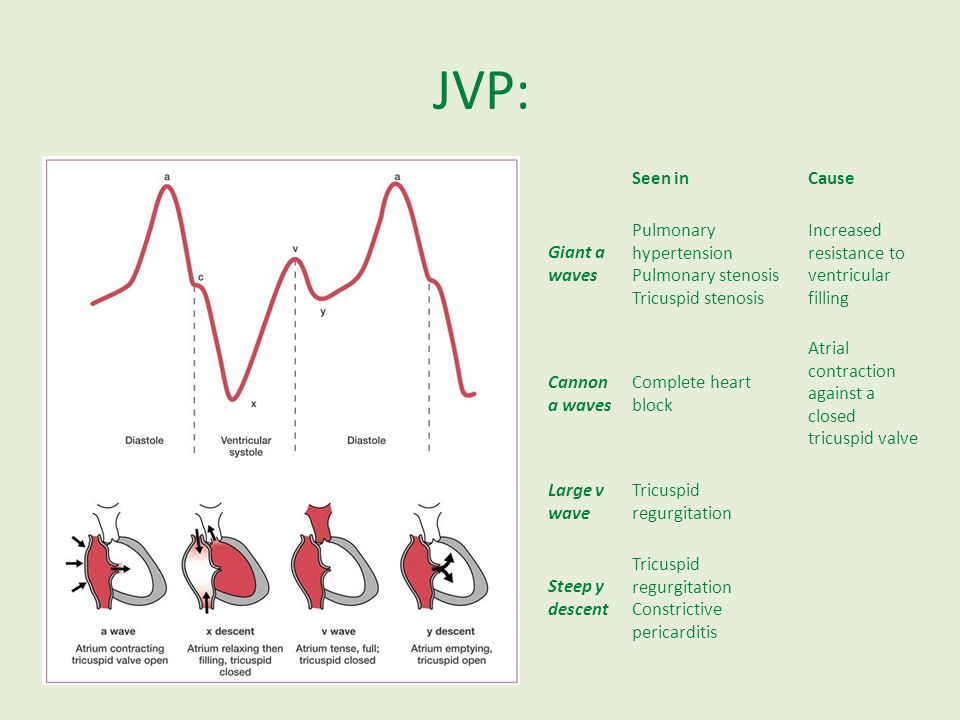 JVP: Seen inCause Giant a waves Pulmonary hypertension Pulmonary stenosis Tricuspid stenosis Increased resistance to ventricular filling Cannon a wave