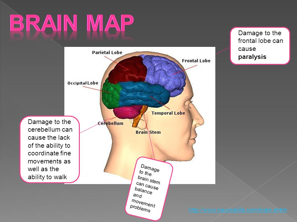 Damage to the frontal lobe can cause paralysis Brain Map Click on an area of the brain to learn more about its functions Damage to the brain stem can cause balance and movement problems Damage to the cerebellum can cause the lack of the ability to coordinate fine movements as well as the ability to walk http://www.neuroskills.com/brain.shtml