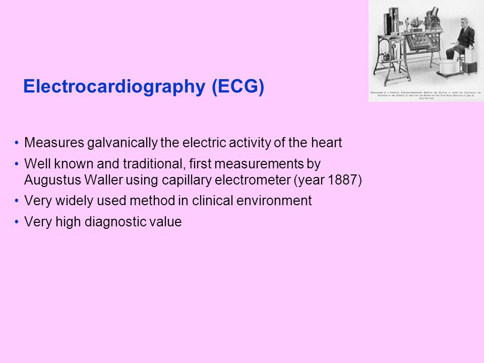 Electrocardiography (ECG) Measures galvanically the electric activity of the heart Well known and traditional, first measurements by Augustus Waller u