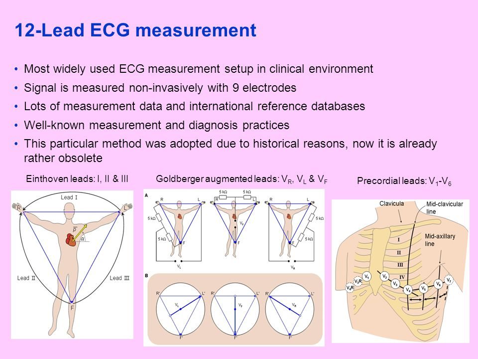 12-Lead ECG measurement Most widely used ECG measurement setup in clinical environment Signal is measured non-invasively with 9 electrodes Lots of mea