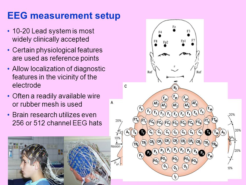 EEG measurement setup 10-20 Lead system is most widely clinically accepted Certain physiological features are used as reference points Allow localizat