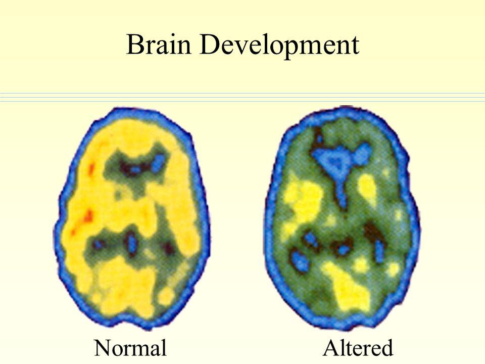 Brain Development AlteredNormal