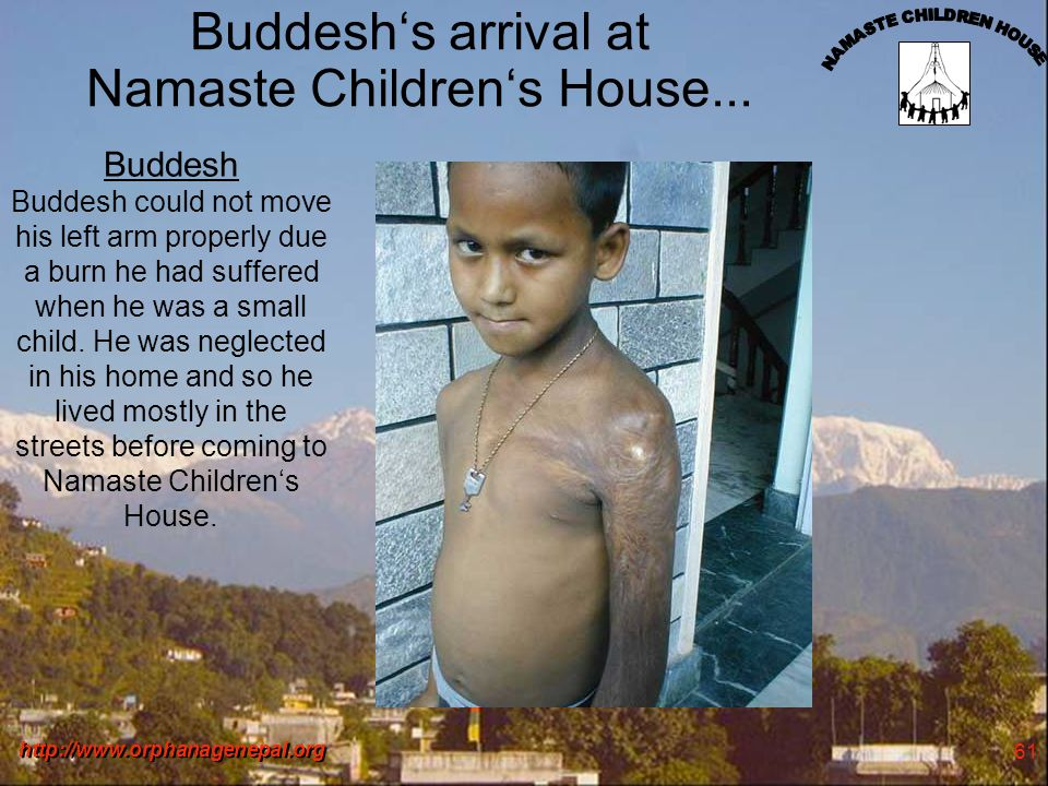 http://www.orphanagenepal.org 61 Buddeshs arrival at Namaste Childrens House... Buddesh Buddesh could not move his left arm properly due a burn he had