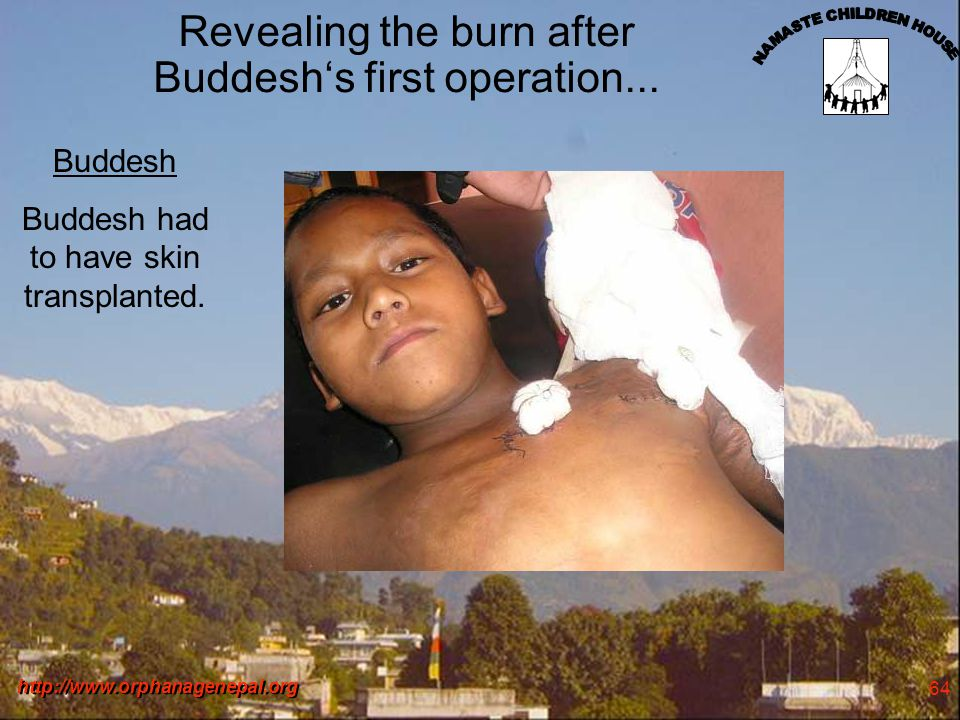 http://www.orphanagenepal.org 64 Revealing the burn after Buddeshs first operation...